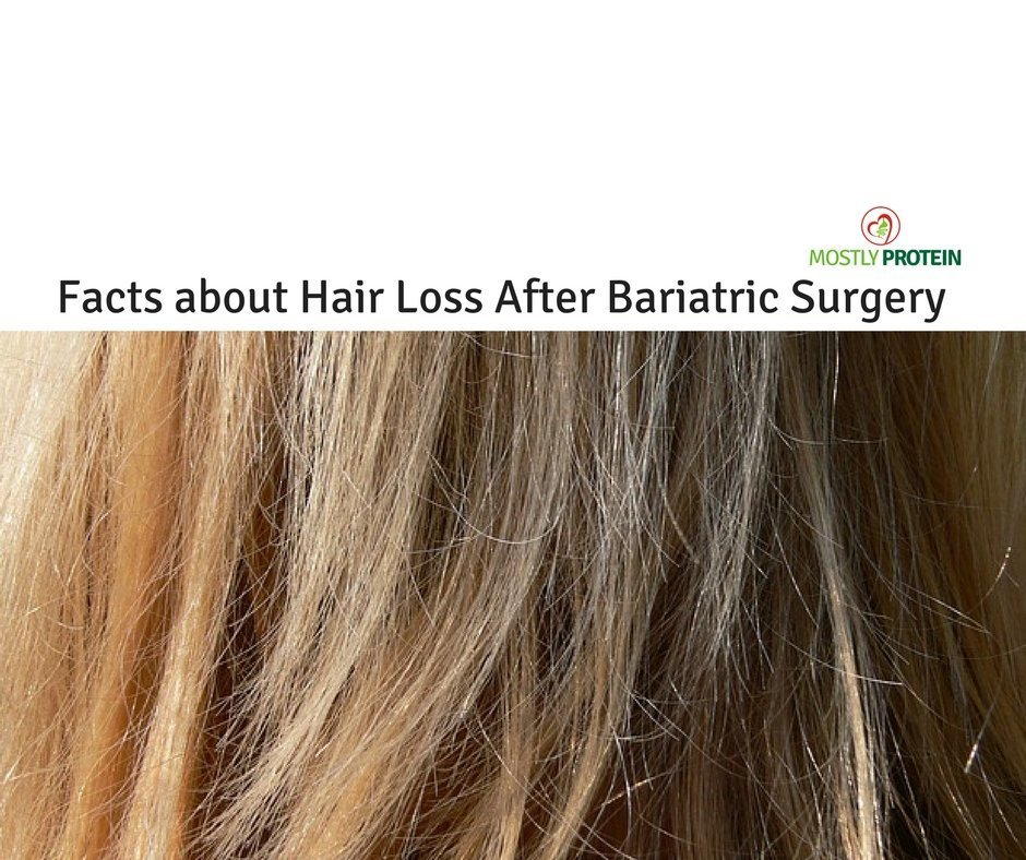 Thinning Hair and Hair Loss After Bariatric Surgery